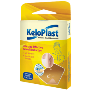 KeloPlast 5x6